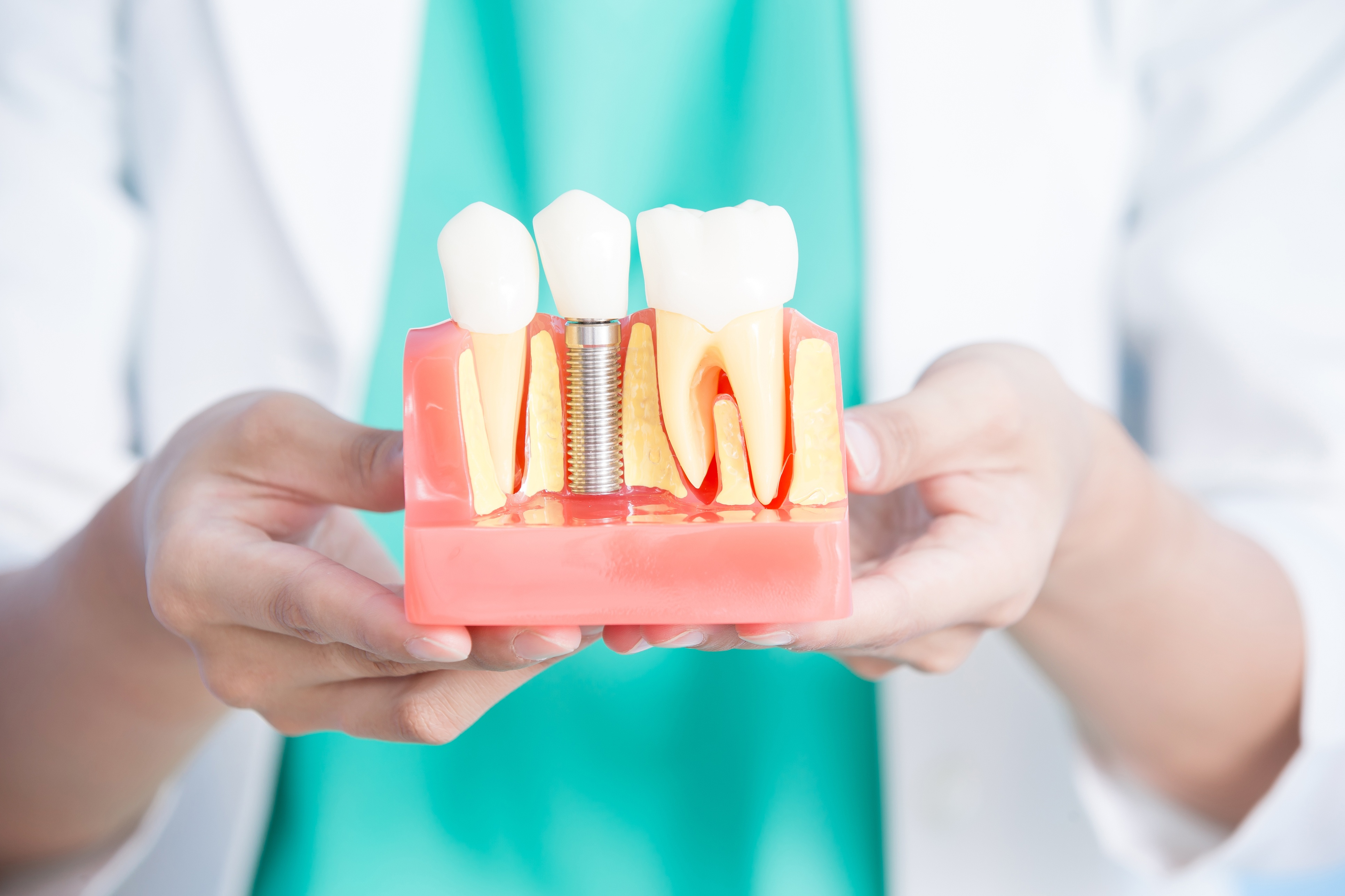 dental implants, reasons to get implants, who does dental implants, does dental insurance cover implants
